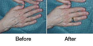 L1 Hands