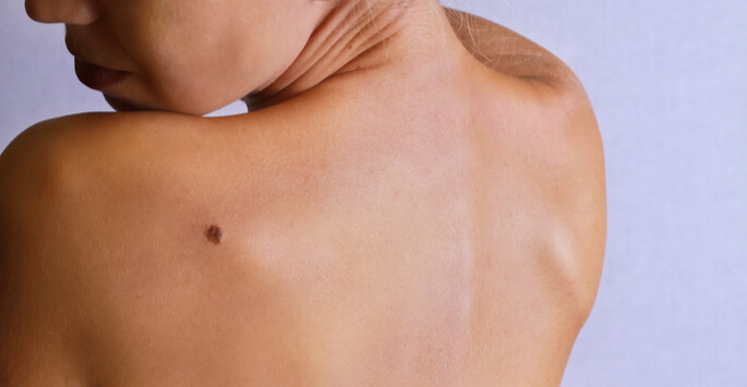 When Should You Consider Mole Removal?