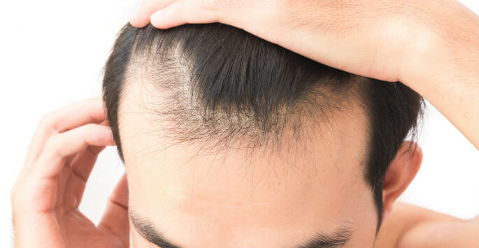 Experiencing Hair Loss? Consider Hair Restoration Treatments
