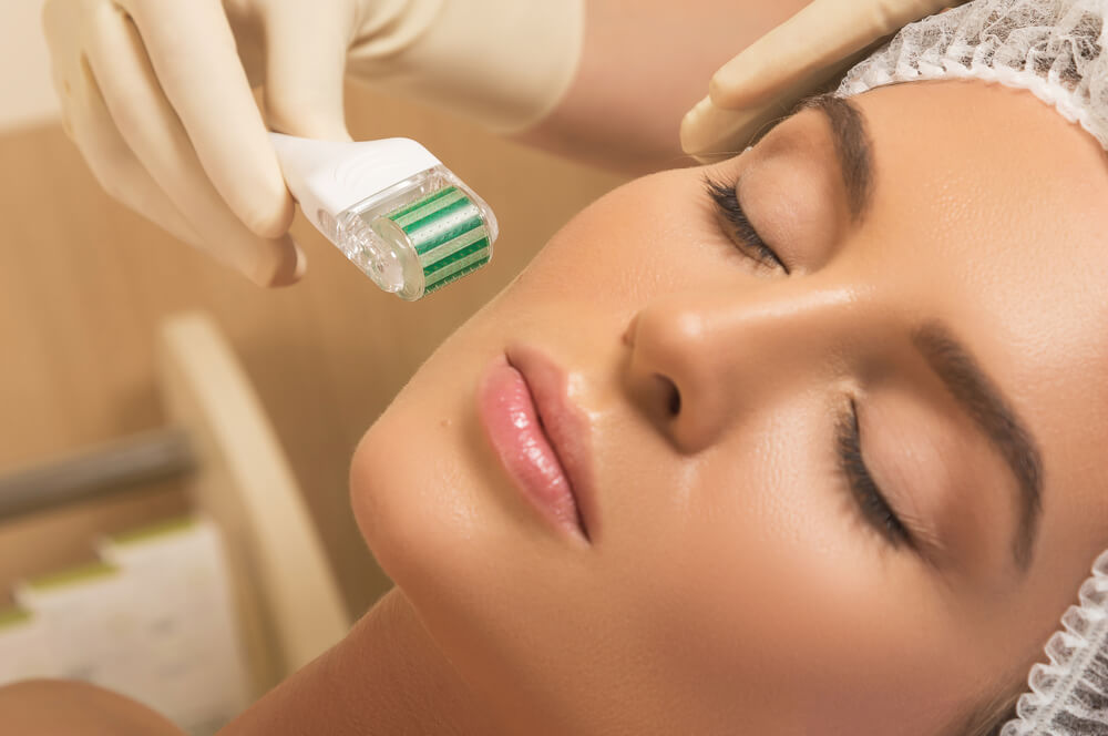 Microneedling Benefits, What Does Microneedling Do for Your Face? 5 Microneedling Benefits