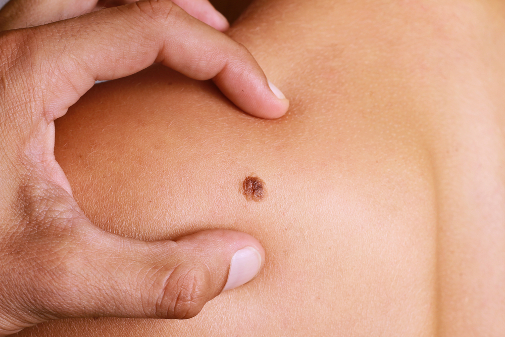 What Should You Expect From Mole Removal Treatment?